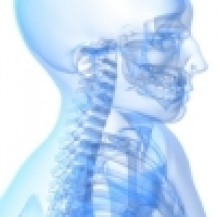 Radicular syndrome in the cervical spine area