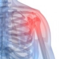Frozen shoulder - how to treat it modernly and faster?